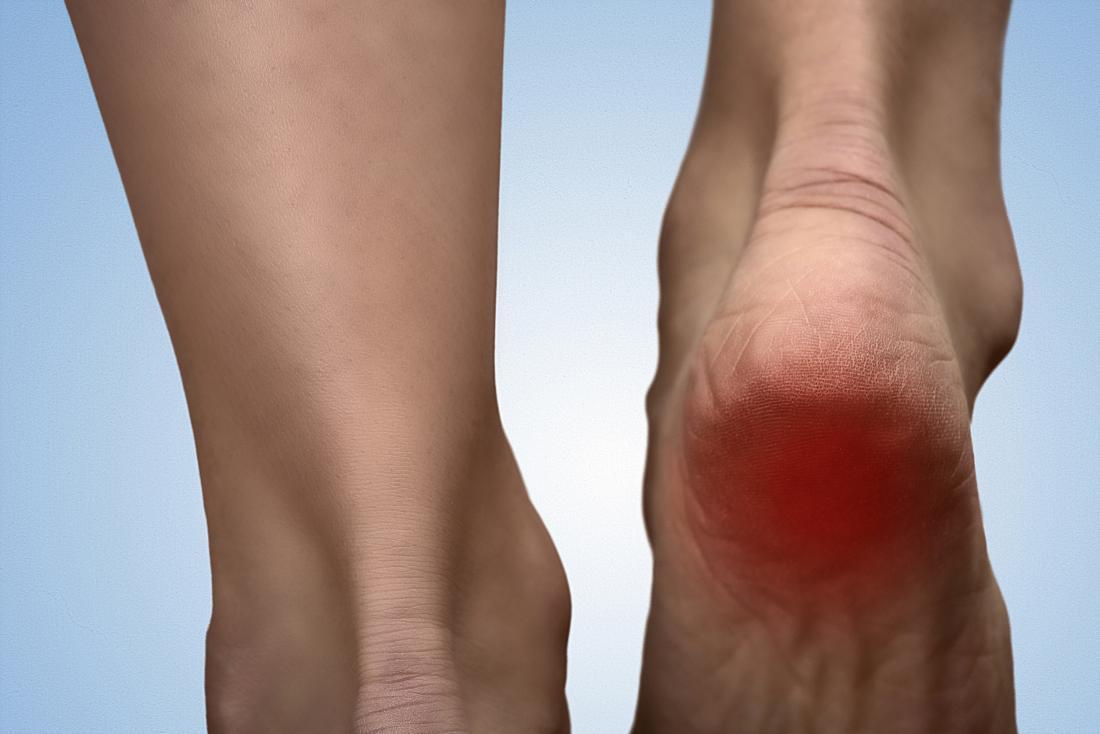 How To Solve Heel Pain?